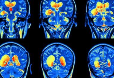 activity in the brain